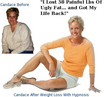 Candace R Weight Loss Before And After Photo